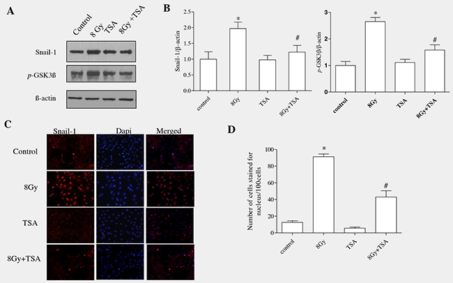 TSA reduced Snail activation and inhibited the phosphorylation of GSK3β in irradiated RLE-6TN cells.