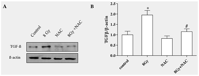 ROS scavenging decreased radiation-induced TGF-β1 level in RLE-6TN cells.