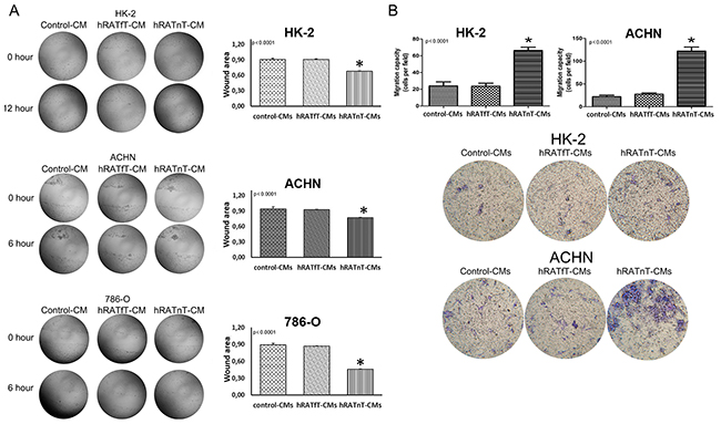 Effect of CMs from hRATnT and hRATfT on migration of HK-2, ACHN and 786-O cell lines.