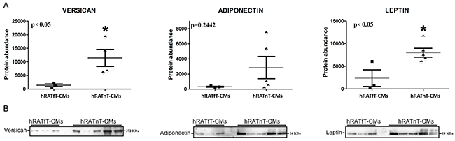 Versican, adiponectin and leptin in hRATnT- and hRATfT-CMs.