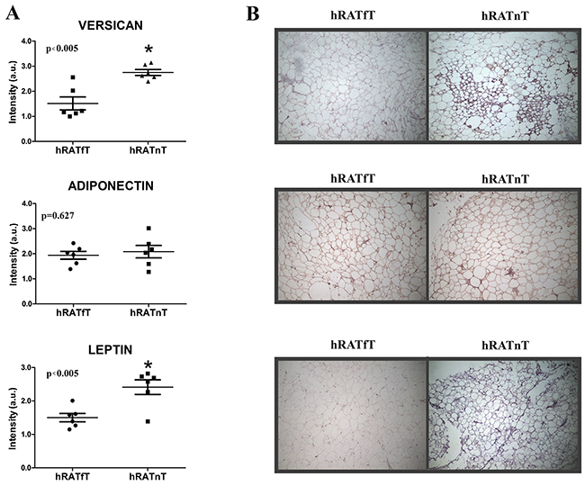 Versican, adiponectin and leptin expression in the different adipose tissues.