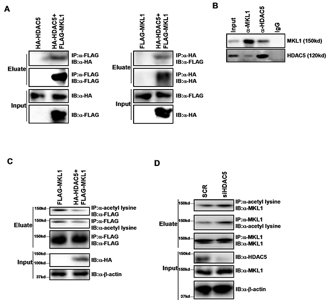 HDAC5 interacts with MKL1 and deacetylates MKL1.