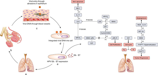 The molecular mechanism of HPV infection leading to lung cancer.