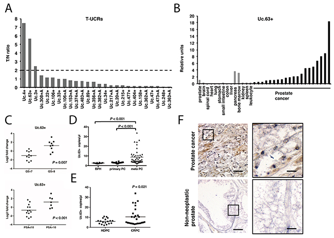 The expression of transcribed ultraconserved regions (T-UCRs) in prostate cancer (PC).