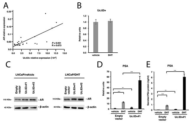 Uc.63+ modulates androgen receptor (AR) and its downstream gene PSA.
