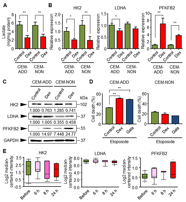 Glycolytic inhibition by dexamethasone (Dex) in CEM-ADD cells leads to increased etoposide-mediated cell death.