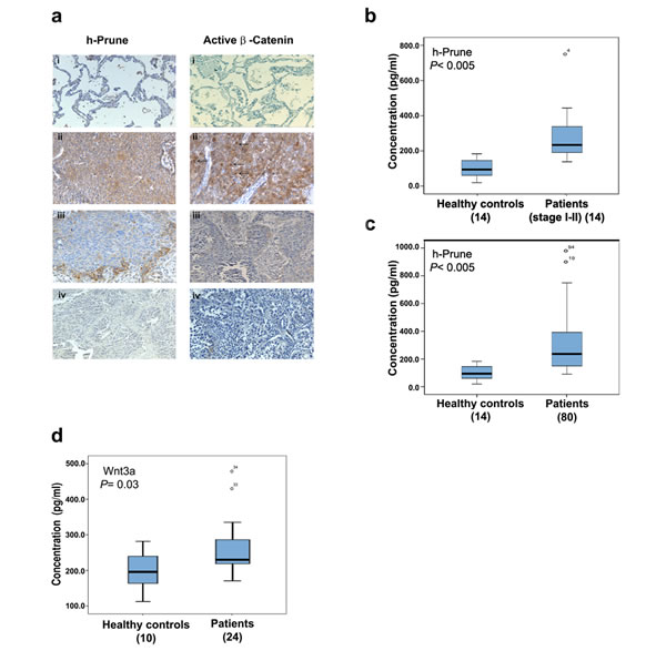 H-Prune is overexpressed in human NSCLC.