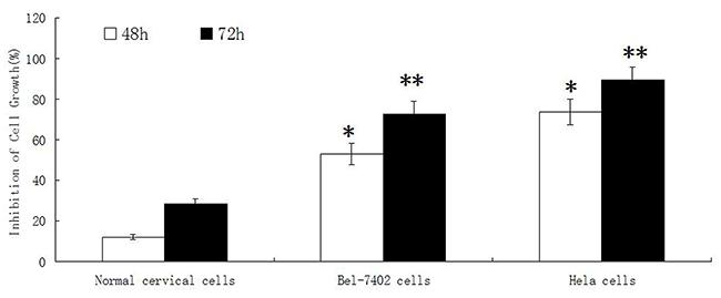 The effect of adenine on proliferation of normal cervical cells, Bel-7402 cells and Hela cells.