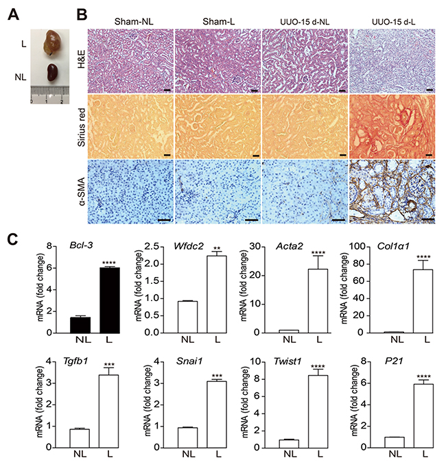 The Bcl-3 mRNA level was increased in renal tissues 15 days after UUO.