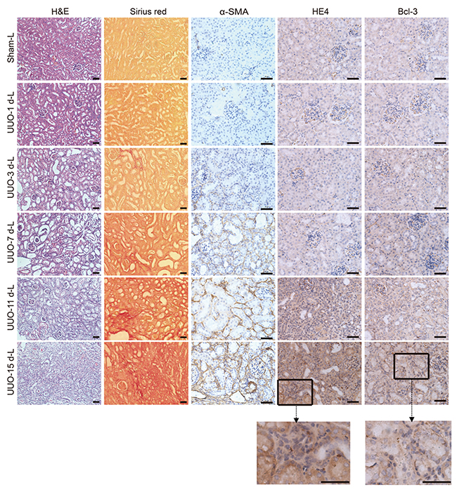 Bcl-3 expression was detected in the cytoplasm of renal tubular epithelial cells.