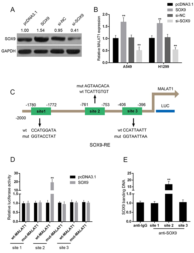SOX9 could bind to the promoter of MALAT1 to promote MALAT1 expression.