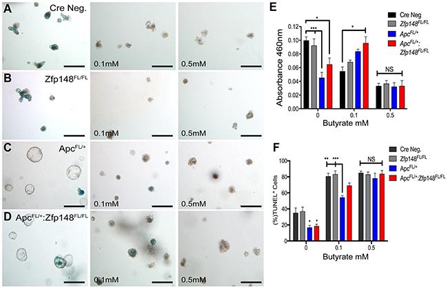 Intestinal organoids show greater sensitivity to butyrate than colon organoids.