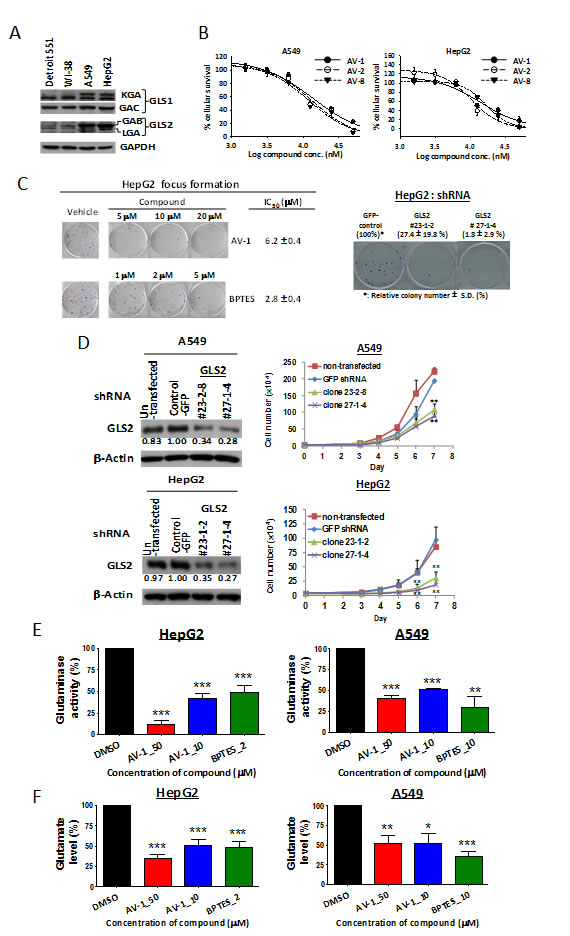 GLS2 inhibition via AV-1 compound or RNA silencing exhibits anti-cancer cell proliferation and anti-anchorage-independent colony formation.