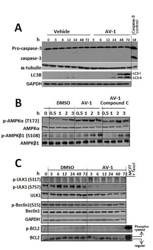 AV-1 induced cell autophagy through activated AMPK and ULK1.