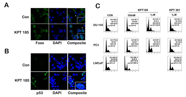 SINE inhibitors help nuclear retention of tumor suppressor proteins like p53 and FOXO by inhibiting functionally XPO 1.