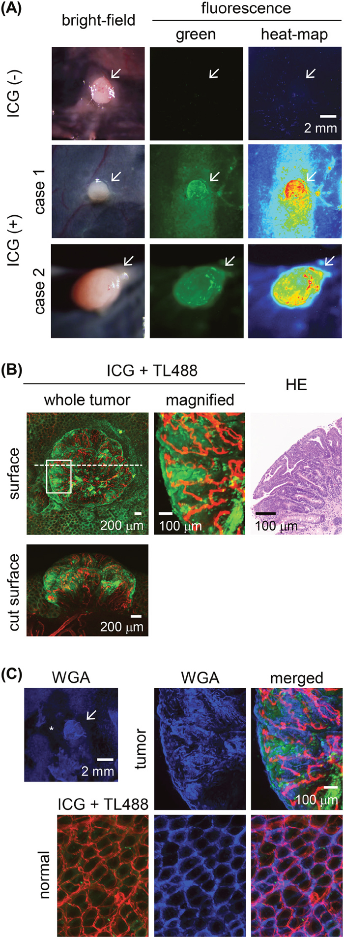 Ex vivo ICG-fluorescence imaging of colon tumors in azoxymethane (AOM)-induced colon carcinogenesis in rats after a 30-min ICG enema.