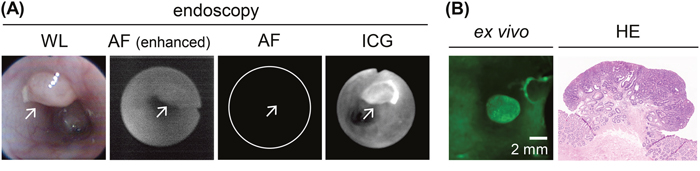 In vivo endoscopic imaging of colon tumors in AOM-induced colon carcinogenesis in rats after a 30-min ICG enema.