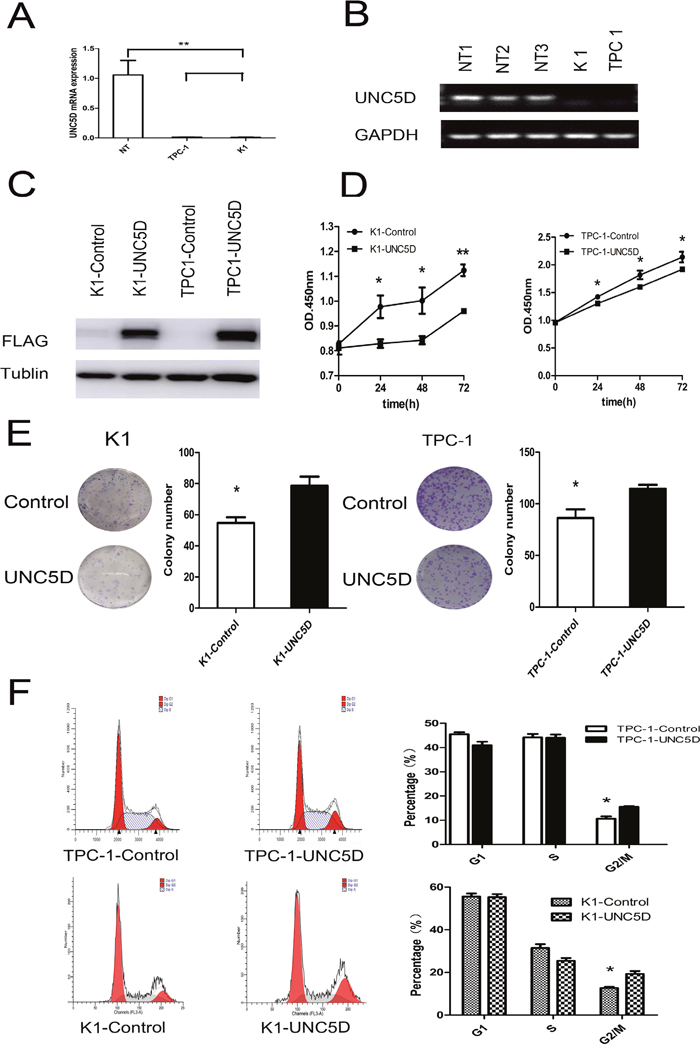 UNC5D inhibits PTC cell growth and cell cycle status.