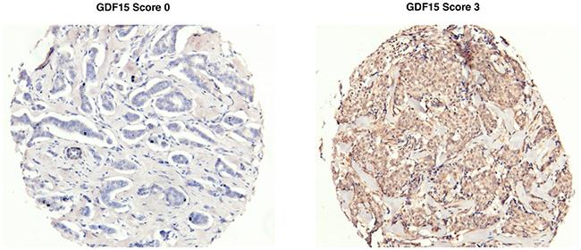 Representative GDF15 immunohistochemical (IHC) staining.