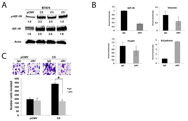 IGF-1R activation contributes to EMT and invasion of GDF15-overexpressing breast cancer cells.