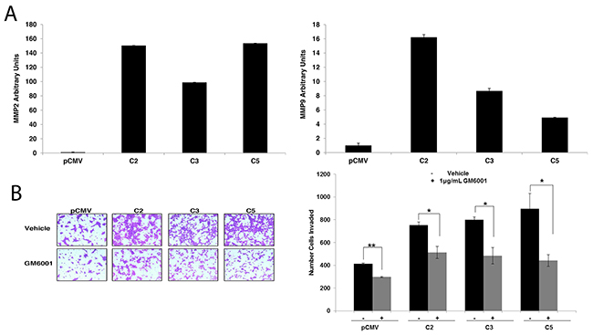 Matrix metalloproteinases (MMPs) mediate invasion of GDF15-overexpressing breast cancer cells.