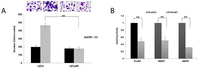 FoxM1 promotes invasion and upregulation of MMP2 and MMP9 in GDF15-overexpressing breast cancer cells.