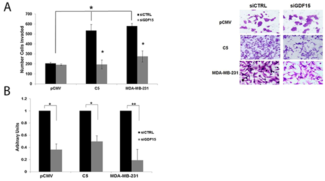 GDF15 knockdown inhibits invasion of breast cancer cells.