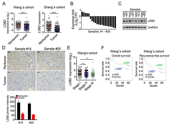 LDB2 is weakly expressed in HCC tumors.