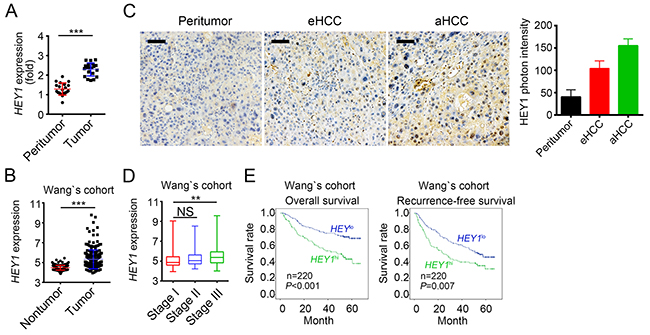 HEY1 is correlated with clinical severity and prognosis of HCC patients.