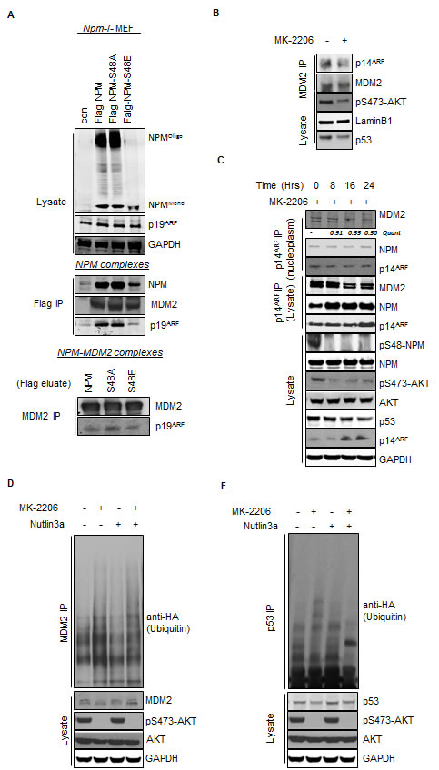 Fig.4: Inhibition of AKT promotes enhanced MDM2 activity via the increased association between NPM and p14ARF.