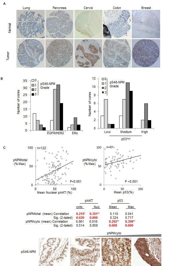 Fig.8: Phospho-S48-NPM correlates with p53 levels in human tumors.