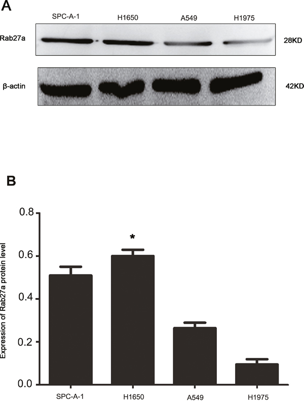 Expression of Rab27a protein in four non-small cell lung cancer cell lines.