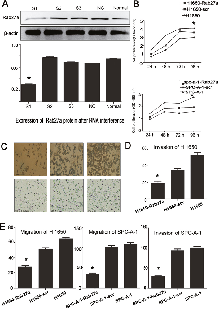 Effect of depleting or enforcing the expression of Rab27a on cell proliferation, migration and invasiveness of lung carcinoma cells.