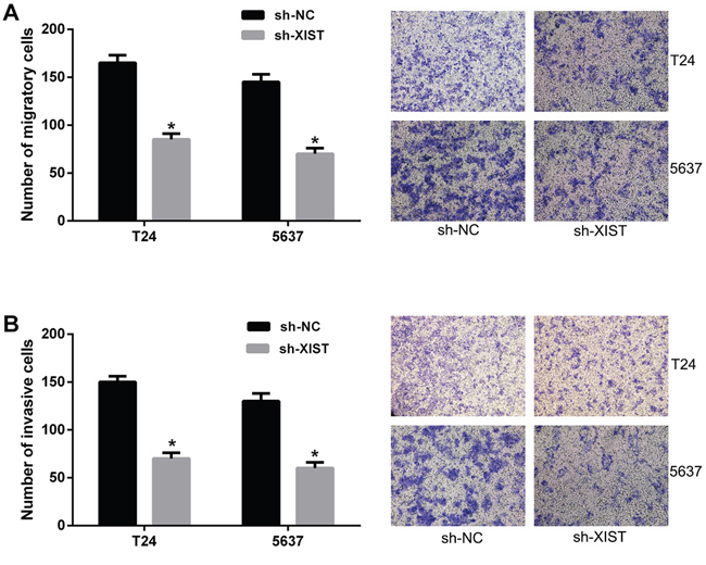 Knockdown of XIST inhibited cell migration and invasion in bladder cancer cells.