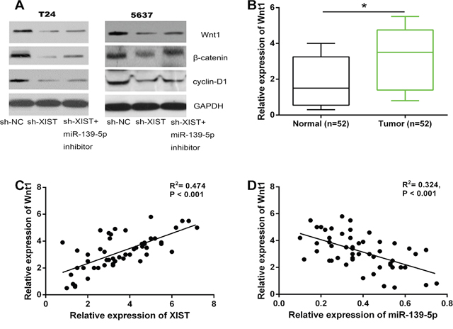 XIST positively regulated the Wnt/β-catenin signaling pathway through miR-139-5p.