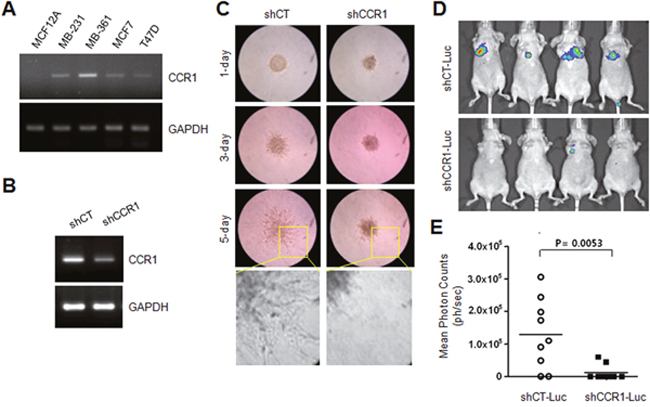 Effect of CCR1 silencing on experimental tumor invasion and metastasis.