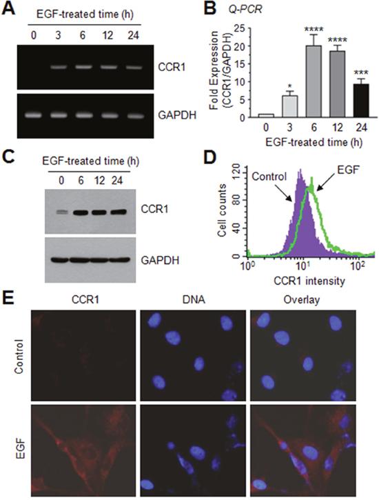 EGF enhances CCR1 expression in MDA-MB-231 breast cancer cells.