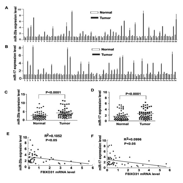 FBXO31 expression is negatively associated with miR-20a and miR-17 in primary GC tissues.