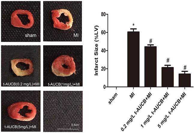 t-AUCB decreased infarct size in MI mice.