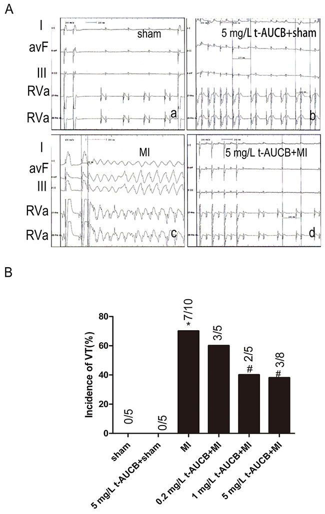 t-AUCB protected against ischemic arrhythmia inducibility in MI mice.