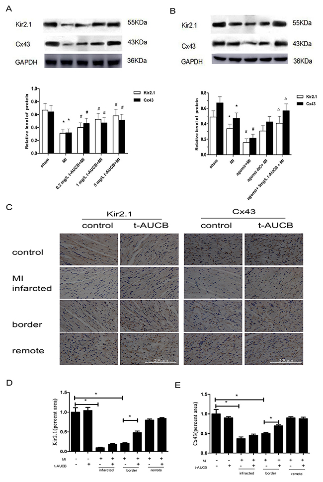 t-AUCB restored the expression of KCNJ2 and GJA1 at the protein level (Kir2.1 and Cx43, respectively) in ischemic myocardium.