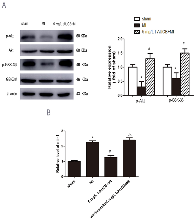 AKT/GSK3β signaling pathway participated in regulation of miR-1 by sEHi.