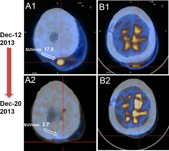PET/CT serves as a favorable tool to evaluate the early therapy effect for EA patient.