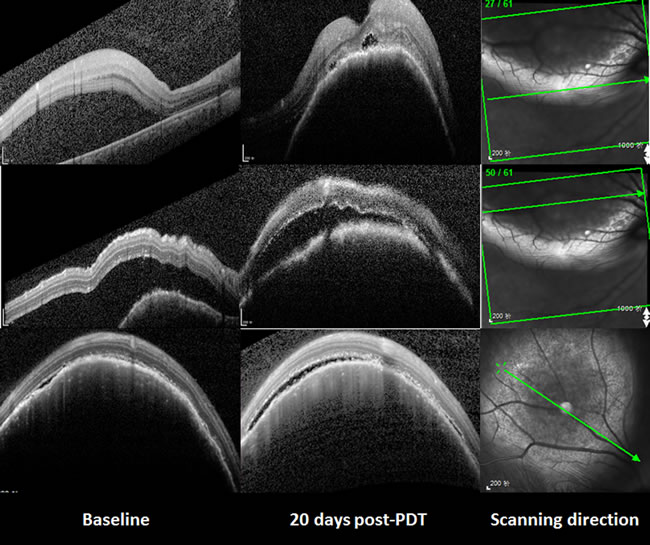 The changes of the choroidal metastasis seen with SD-OCT.