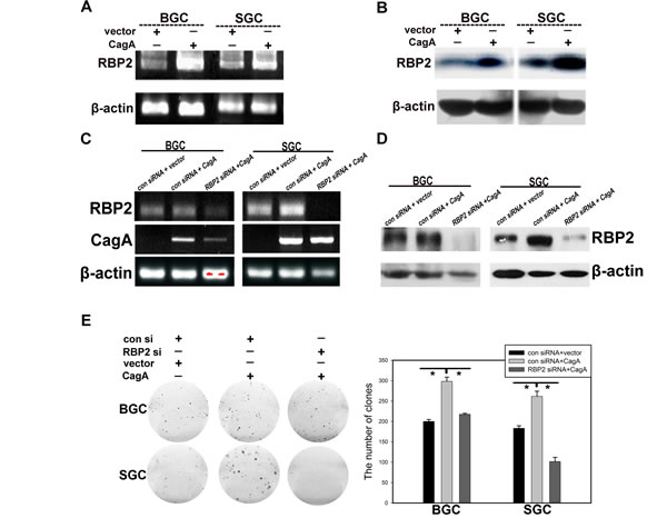 Helicobactor Pylori CagA can stimulate RBP2 expression and depletion of RBP2 abrogates cell proliferation induced by CagA.