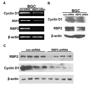 Cyclin D1 is a downstream target of RBP2 and it imposes the pro-proliferation effect.