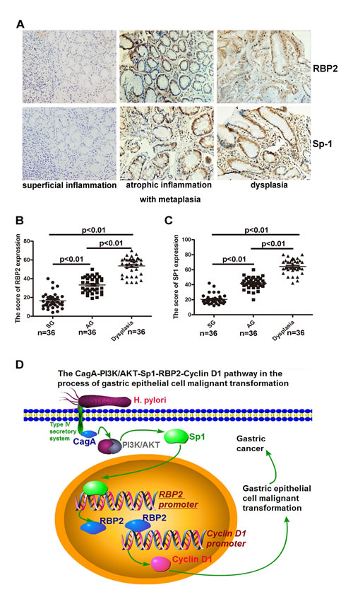 Co-expression of RBP2 and Sp1 expression in clinical samples from chronic inflammation to dysplasia.