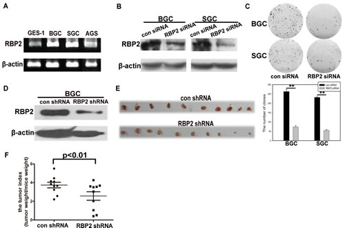 Figure1: RBP2 is overexpressed in GC cell lines and its inhibition suppressed cell proliferation in vitro and tumor development in vivo.