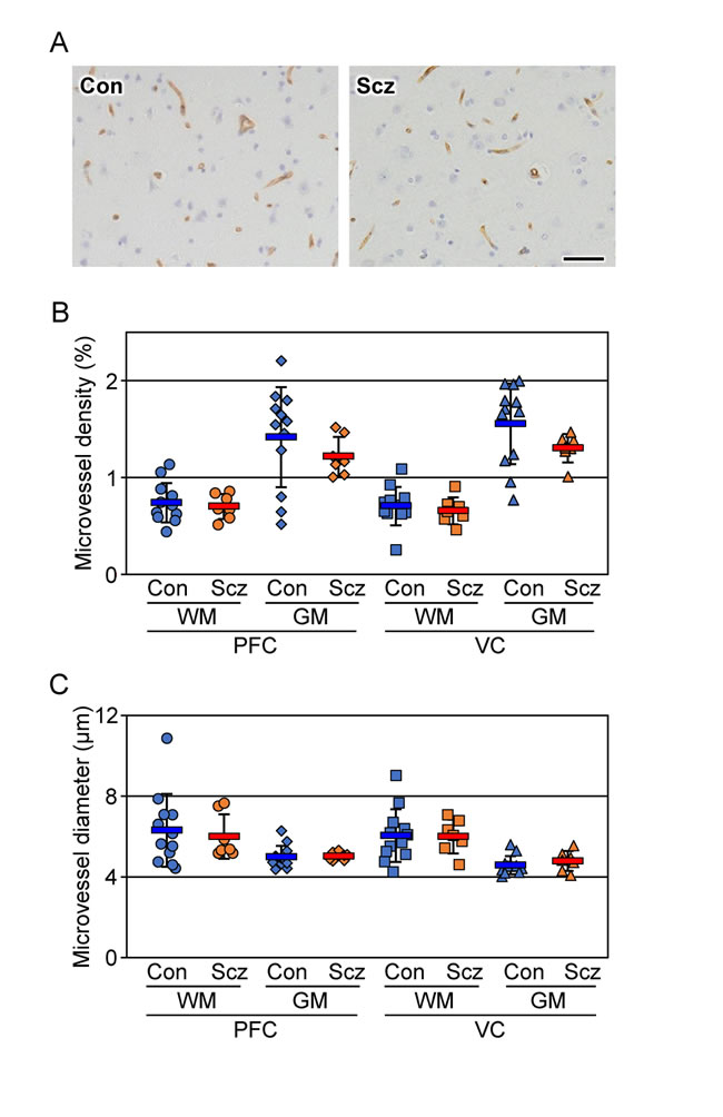 No changes are detected in the microvessel density and diameter of the schizophrenic brain cortex.
