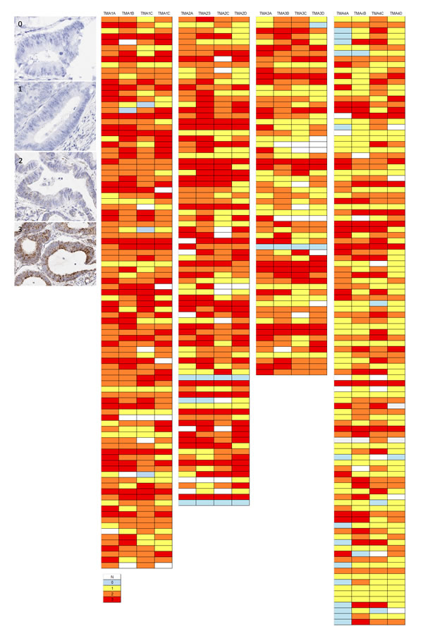 Examples of variation in PPIB expression (0-3) in individual TMA cores in a CRC series.